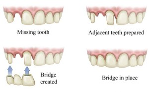 Illustration of dental bridges