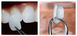 Split photo showing dental veneers