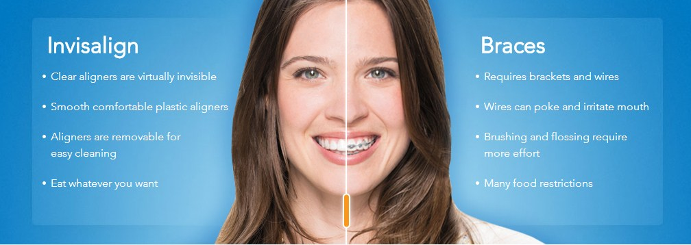 Illustration comparing Invisalign to traditional braces
