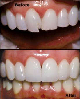 Before and after photo of tooth bonding procedure