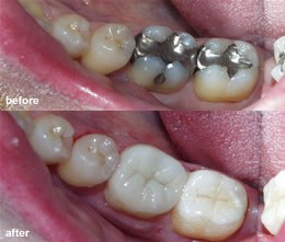Before and after photo of metal fillings vs. tooth colored fillings