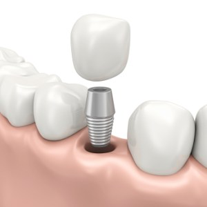 Illustration of single tooth implant