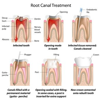 Diagram of teeth and root canal