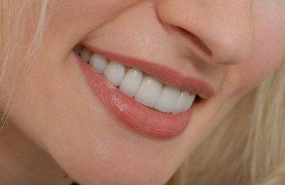 Closeup of woman's teeth after whitening